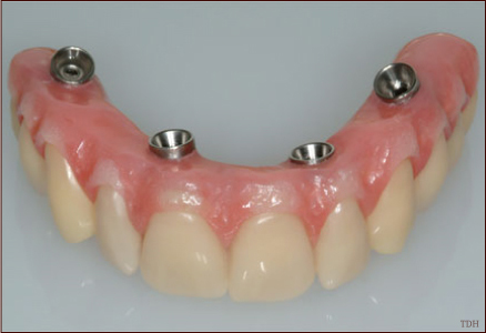 implantologia all on four