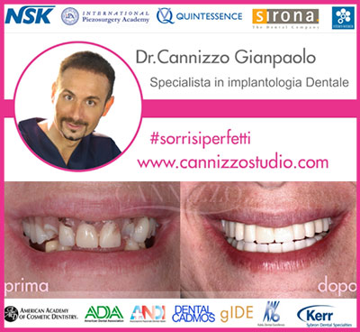 banner implantologia dentale clinica